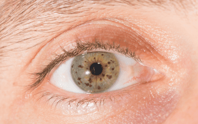 Why Do I Have an Eye Freckle, and Is It Dangerous?